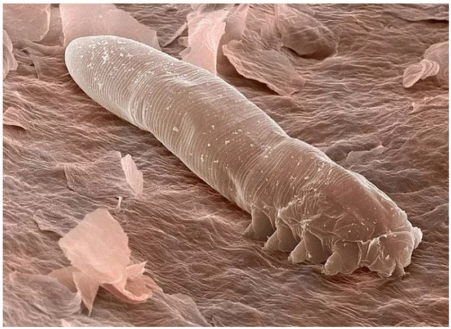 The Tiny Mites That Live in Our Skin